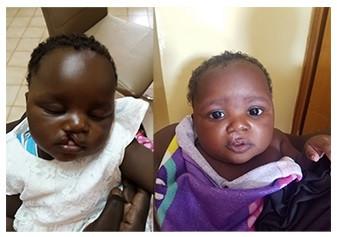 Un enfant avant et après l'opération d'une fente labiale