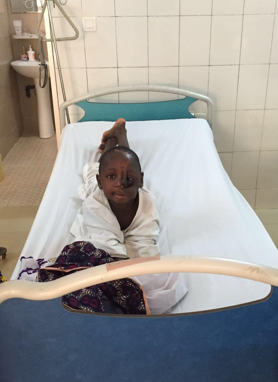 Ibrahim, jeune malade opéré du Noma