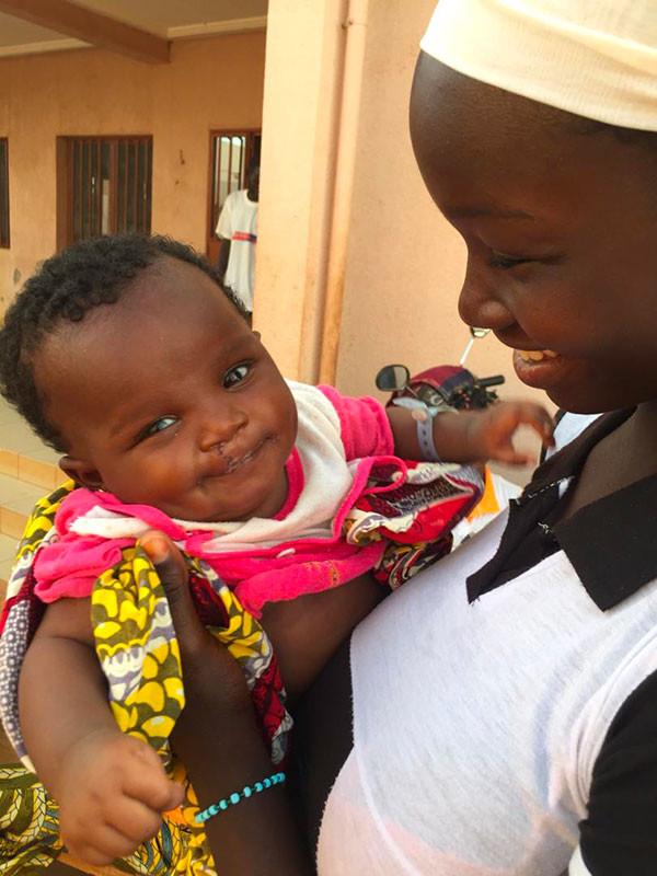 Mission noma au Burkina Faso
