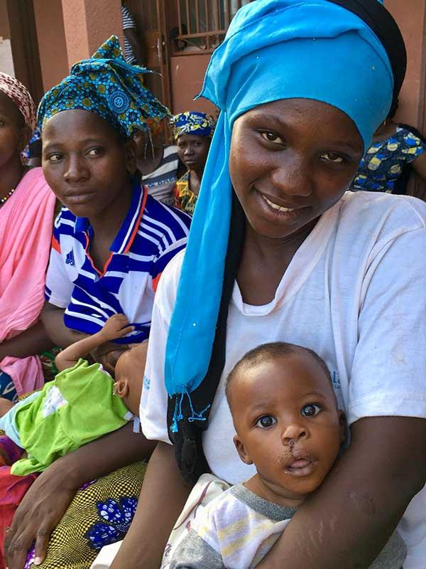 Mission de chirurgie réparatrice au Mali