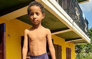 Diego avant son opération du cœur