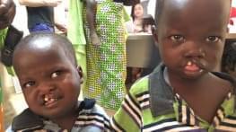 amadou et issa sont nes avec le visage atrocement deforme