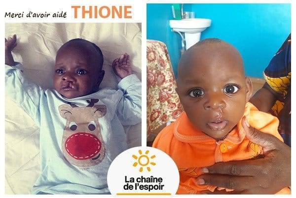 Thione
